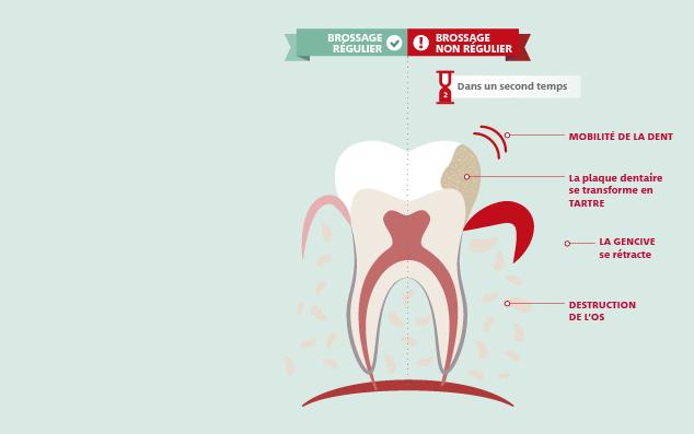 plaque dentaire, conséquences