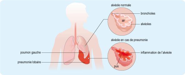 Schéma représentant l'appareil respiratoire et les lésions l'affectant en cas de pneumonie (cf. description détaillée ci-après)