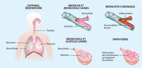 Schéma représentant les lésions affectant l'appareil respiratoire en cas de BPCO (cf. description détaillée ci-après)