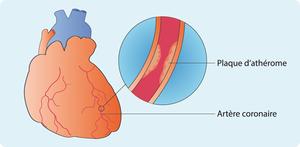 Schéma représentant une plaque d'athérome réduisant le débit sanguin au niveau de l'artère coronaire (cf. description détaillée ci-après)