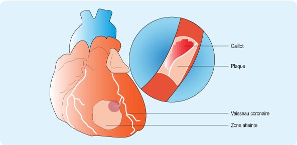 Schéma illustrant la formation d'un infarctus du myocarde au niveau d'un vaisseau coronaire du cœur (cf. description détaillée ci-après)