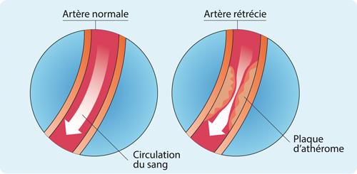 Schéma : artère normale et rétrécie (500 px)