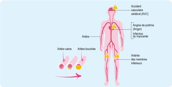 Schéma : les artères du cerveau, du cœur et des jambes et l'athérosclérose