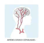 Schéma représentant les artères cervico-céphaliques, prenant leur source dans le cerveau pour descendre dans le cou