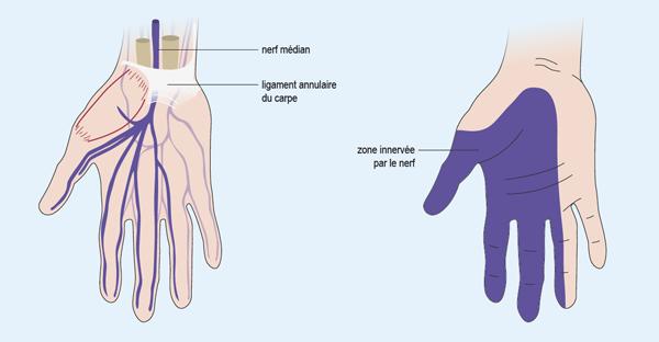 Schéma représentant la zone innervée de la main par le nerf médian (cf. description détaillée ci-après)