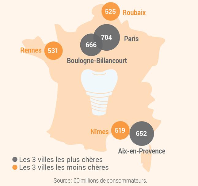 Carte de France présentant l'écart des tarifs d'une prothèse dentaire entre les villes de Paris, Boulogne-Billancourt, Aix-en-Provence, Rennes, Roubaix et Nîmes (cf. description détaillée ci-après)