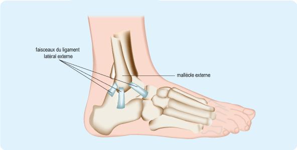 entorse ligament interne cheville