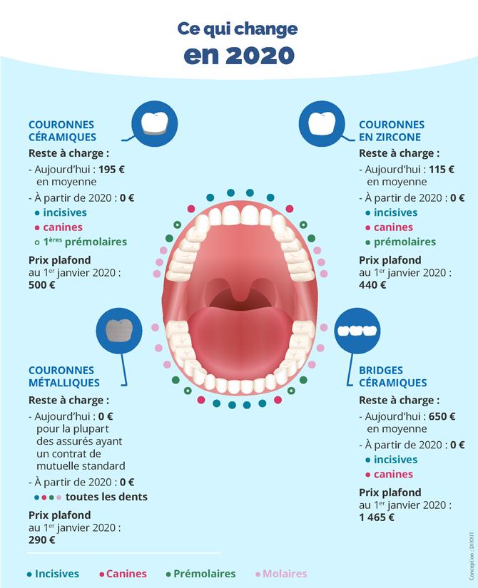 Des prothèses dentaires bientôt remboursées à 100 %   ameli.fr   Assuré 851b215481e6