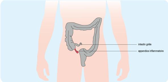Schéma indiquant l'emplacement d'un appendice inflammatoire dans le côlon (cf. description détaillée ci-après)