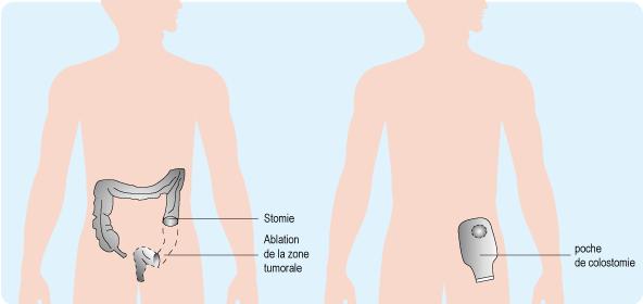 Schéma : la colostomie