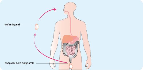 Schéma représentant le mécanisme de contamination orale par ingestion d'œufs d'oxyures (cf. description détaillée ci-après)