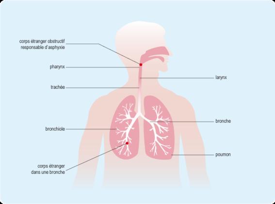 Schéma représentant les deux emplacements d'un corps étrangers dans l'appareil respiratoire: dans le pharynx et dans une bronche (cf. description détaillée ci-après)