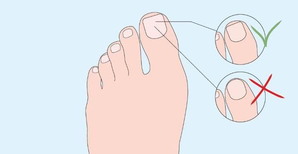 Schéma illustrant la bonne façon de tailler les ongles de pieds : les couper droit et non en demi-cercle