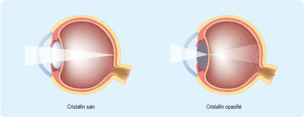 Schéma représentant les effets de l'opacification du cristallin (cf. description détaillée ci-après)