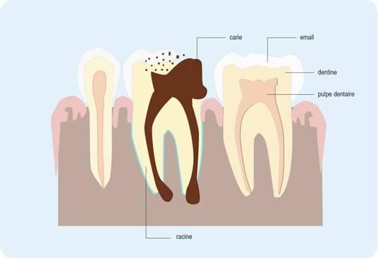 Schéma représentant l'évolution d'un abcès dentaire (cf. description détaillée ci-après)