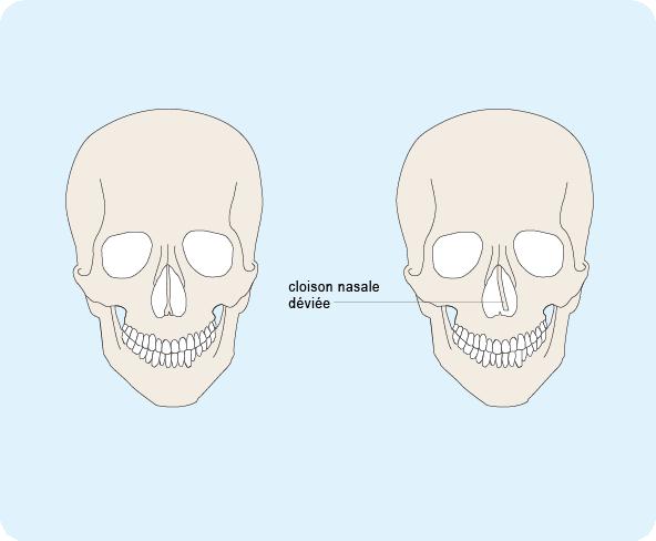 Schéma d'un crâne humain représentant la déviation d'une cloison nasale