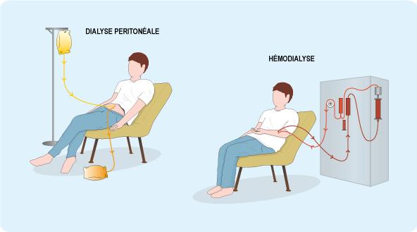 Schéma expliquant le mécanisme des deux techniques de dialyse, la dialyse péritonéale et l'hémodialyse (cf. description détaillée ci-après)