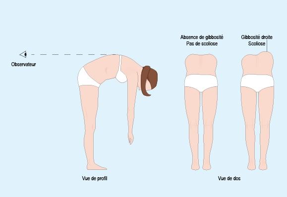 Schéma illustrant comment observer une gibbosité dans le dos d'une personne atteinte de scoliose (cf. description détaillée ci-après)