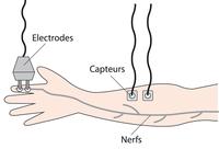 Schéma représentant le processus d'un électromyogramme où des électrodes sont placés sur les doigts et des capteurs sur l'avant-bras afin de mesurer l'activité des nerfs