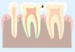 Schéma représentant le premier stade d'une carie, affectant uniquement l'émail, la partie superficielle de la dent