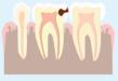 Schéma représentant le second stade d'une carie, affectant l'émail et la dentine, partie intérieure de la dent