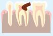 Schéma représentant une rage de dent, affectant l'émail, la dentine et la pulpe dentaire, la partie la plus interne de la dent
