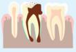 Schéma représentant un abcès dentaire affectant l'ensemble de la dent jusqu'à la gencive