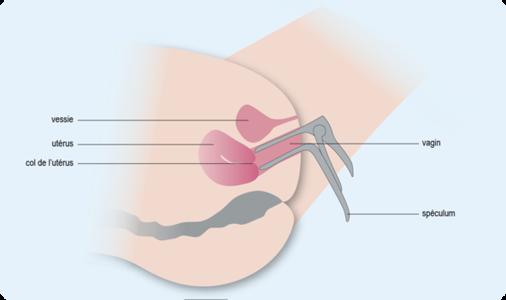 Schéma représentant la bonne position d'un spéculum dans un vagin (cf. description détaillée ci-après)