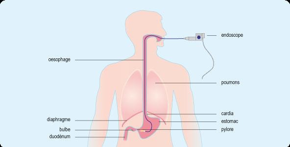Schéma représentant le trajet d'un endoscope à l'intérieur de l'appareil digestif supérieur, le long de l'œsophage et dans l'estomac (cf. description détaillée ci-après)