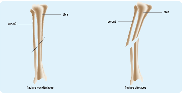 Schéma : fracture non déplacée ou déplacée