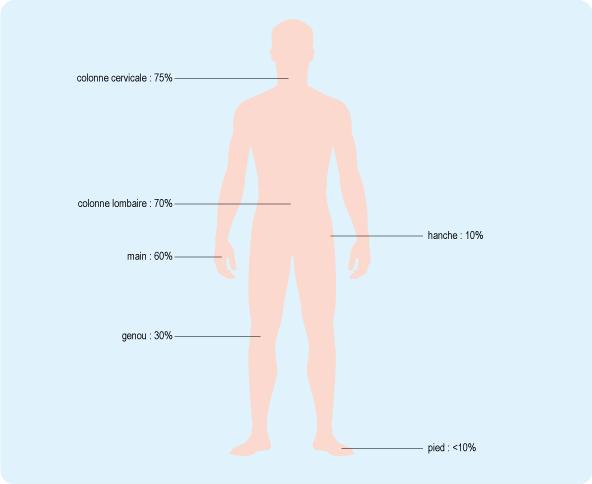 Schéma représentant la fréquence de l'arthrose constatée sur les radios de personnes âgées de 65 à 75 ans (cf. description détaillée ci-après)