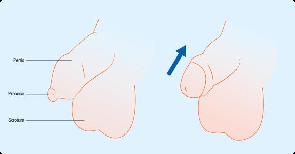 Schéma : gland non décalotté et décalotté
