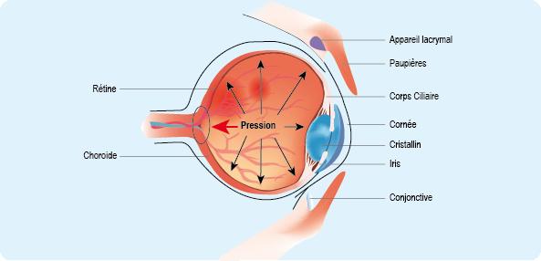 Schéma représentant les mécanismes de la pression intraoculaire, l'un des facteurs d'apparition du glaucome (cf. description détaillée ci-après)
