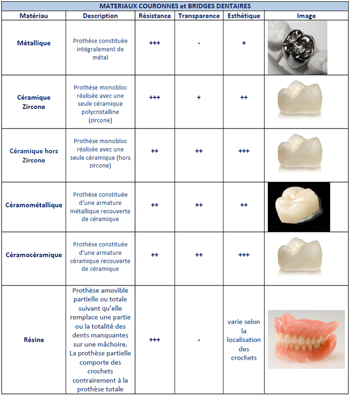Infographie présentant les caractéristiques des différents matériaux utilisés pour les couronnes et bridges dentaires