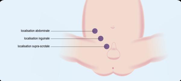 Schéma : les différentes localisations des testicules cryptorchides