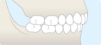 schéma malposition dentaire classe II division 2