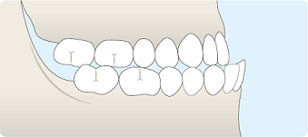 schéma malposition dentaire de classe III