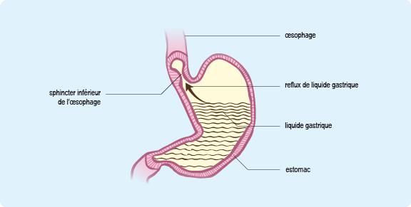 reflux gastro oesophagien sans acidité