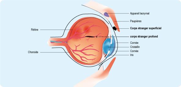 Schéma en coupe d'un œil représentant la position des corps étrangers superficiels, sous la paupière, et profonds, dans le corps vitré (cf. description détaillée ci-après)
