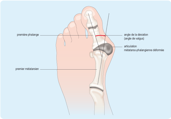 Hallux valgus sympt mes causes et volution for Douleur interieur du pied