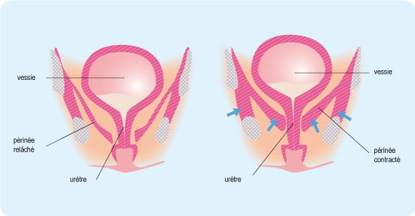 Schéma représentant la contraction d'un périnée, sous la vessie (cf. description détaillée ci-après)