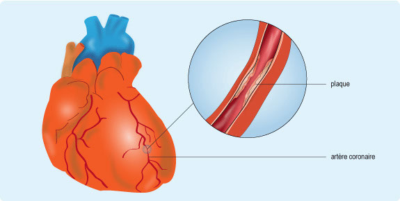 Schéma illustrant la formation d'une plaque d'athérome au niveau d'une artère coronaire (cf. description détaillée ci-après)