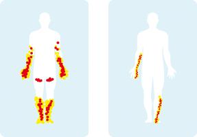 Schéma représentant les zones fréquemment touchées par la polyneuropathie (le bas des jambes, le haut des cuisses et les bras) et la mononeuropathie (l'avant-bras droit et le bas de jambe gauche)
