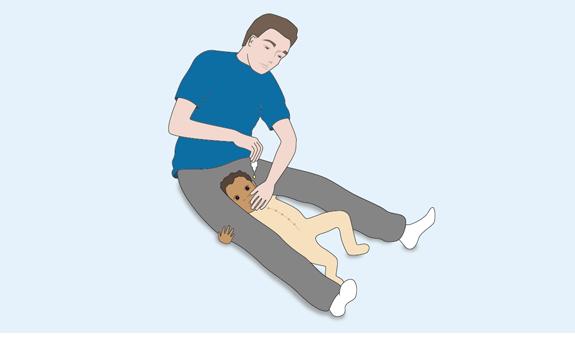 Schéma : position possible pour mettre des gouttes dans les oreilles de l'enfant