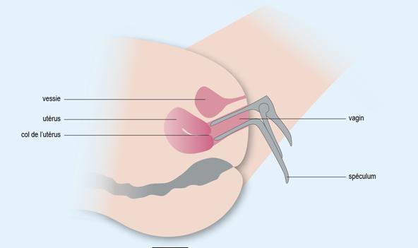 Schéma : position du spéculum dans le vagin lors d'un frottis