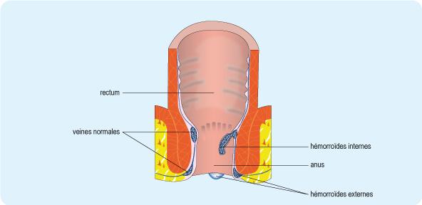 Schéma en coupe du rectum illustrant la position des hémorroïdes internes et externes au niveau de l'anus (cf. description détaillée ci-après)