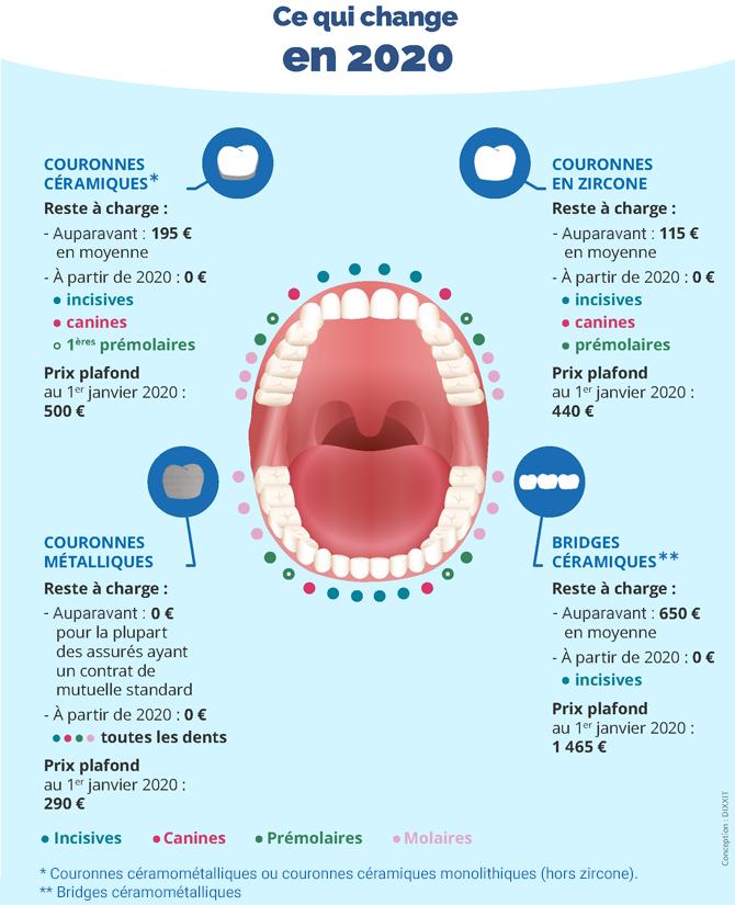 """Infographie sur les couronnes et bridges pris en charge dans le cadre du """"100 % Santé"""" en fonction des matériaux utilisés et de la localisation de la dent"""