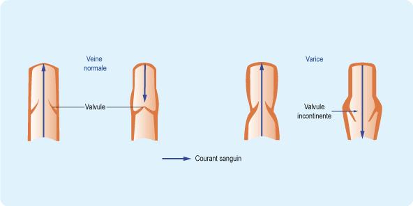 Schéma : rôle des valvules des veines