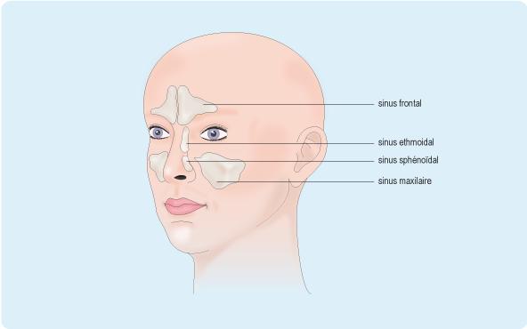 Schéma du visage indiquant la localisation des sinus de la face: sinus frontal, sinus ethmoïdal, sinus sphénoïdal et sinus maxillaire (cf. description détaillée ci-après)