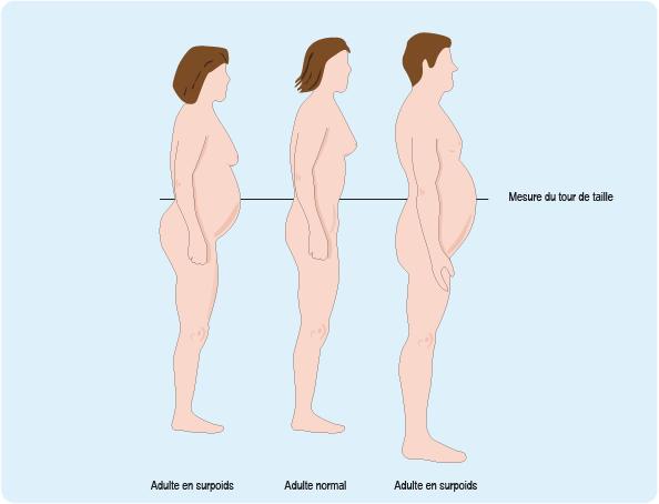 Schéma montrant deux adultes en surpoids et un adulte au tour de taille jugé normal